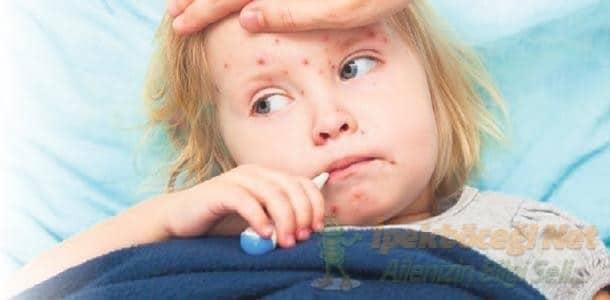 Çocuk Hastalıkları ve Tedavileri – Kızamık